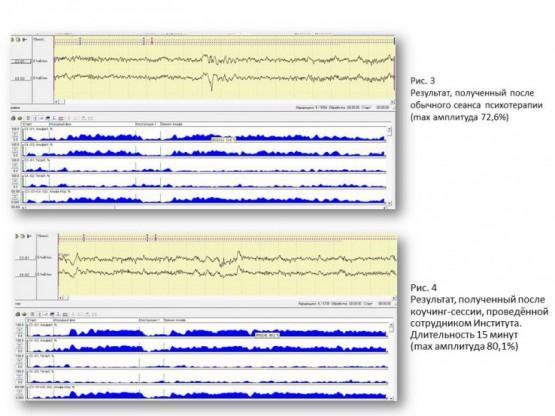 Исследование качества инструментов коучинга с помощью ЭЭГ.2